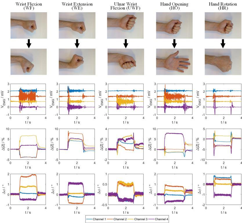 Measurement result of five typical hand gestures, using the four measurement modules simultaneously. Each muscle contraction was performed for a duration of about 2 s. In the plots below the corresponding photographs, the EMG signals as well as the bioimpedance magnitudes and phases are shown. The EMG data was preprocessed by a digital 50 Hz notch filter, whereas the impedance signals have not been filtered digitally. Comparing the resulting plots leads to the conclusion that the magnitude and phase signals of the bioimpedance provide additional useful information about muscle contractions. Additionally, hand gestures which are difficult to detect via EMG measurements, for example the hand rotation (HR), can be recognized via bioimpedance measurements reliably